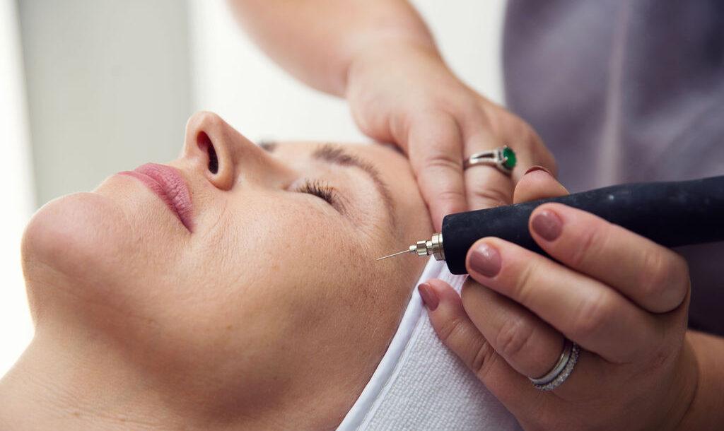 client undergoing Accor Plasma Pen treatment at Eden Beauty and Aesthetics